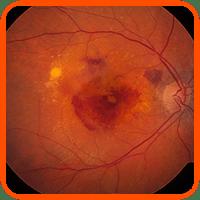 marco degeneracion macular