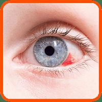 marco desprendimiento de retina