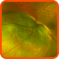 marco tumores oculares